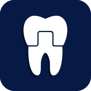 Best Dentist in Logan Utah - Crowns
