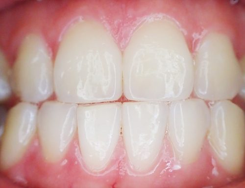 What is Gingivitis??